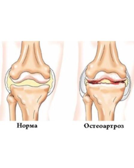 позвоночные хрящи при остеоартрозе