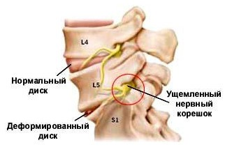 боль голова 3