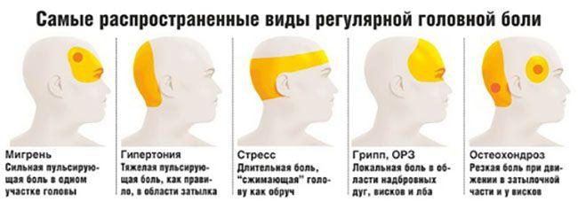 боль голова 4