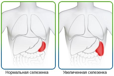 uvelicheniye-selezenki2