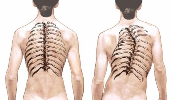 Сколиоз-грудного-отдела-позвоночника-1