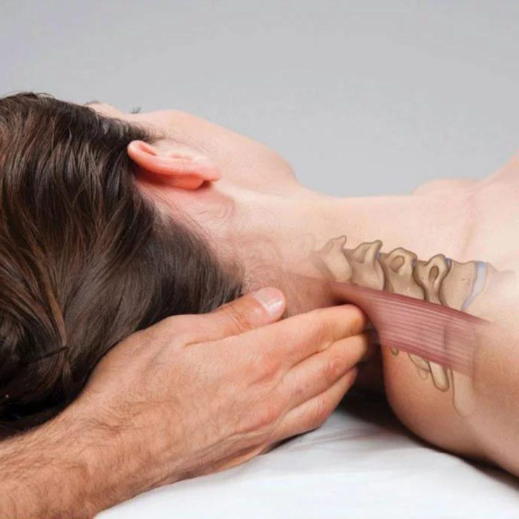 рис 4 дорсопатия шейного отдела - лечение