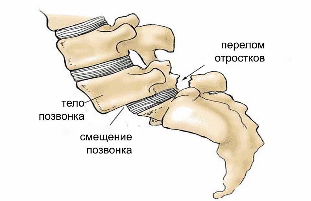 рис3 смещение поясичных позвонков перелом