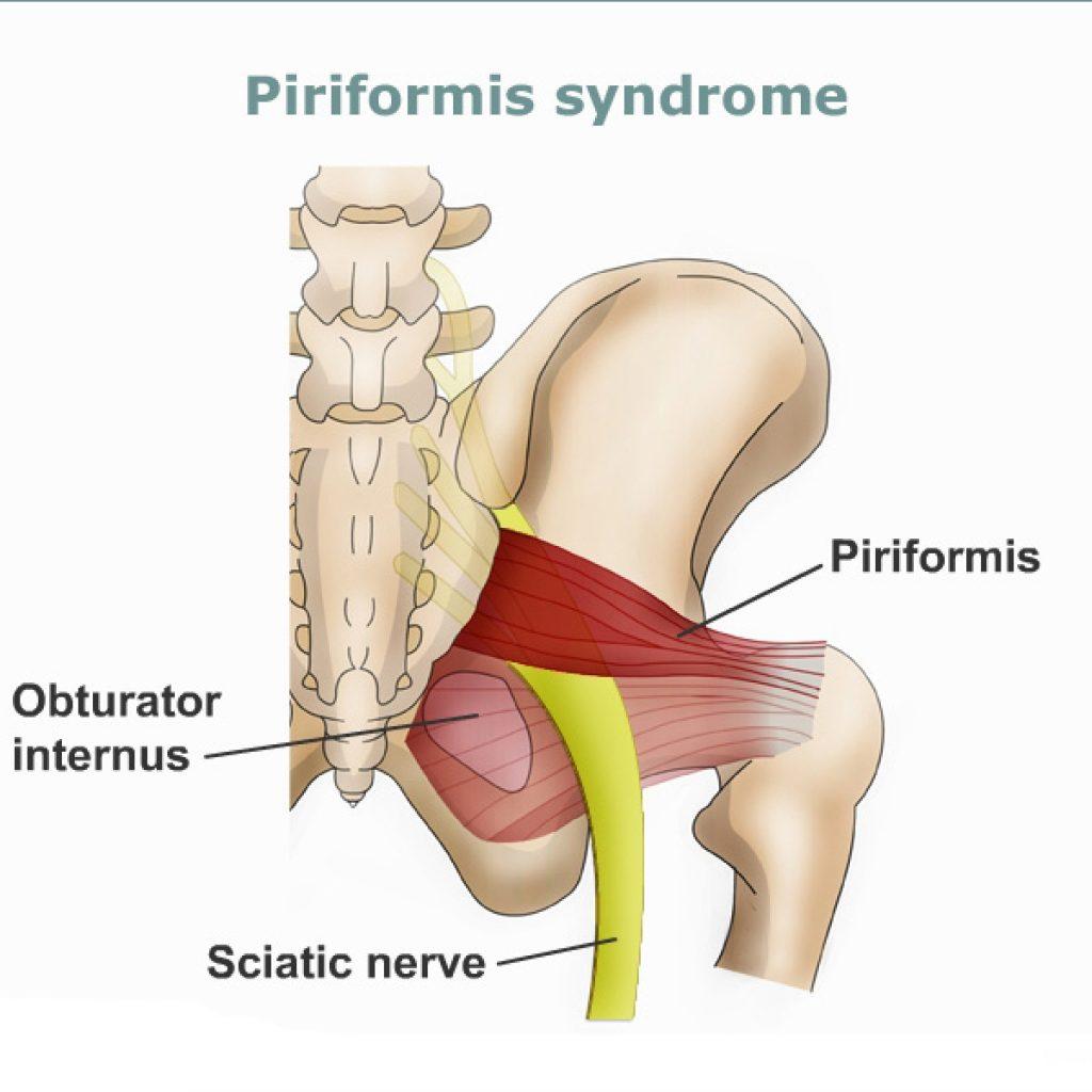 рис4 седалищный нерв - грушевидной мышцы синдром