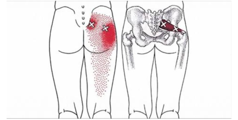 рис6 седалищный нерв локализация боли