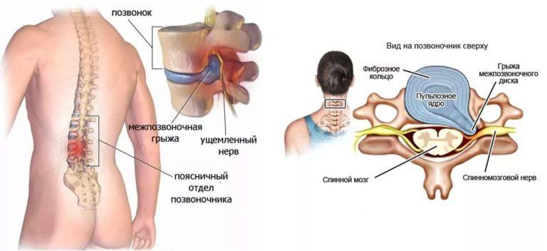 рис 4 дорсопатия поясничного отдела