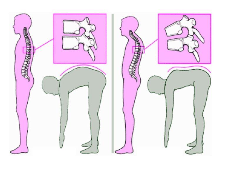 рис 6 дорсопатия поясничного отдела - диагностика