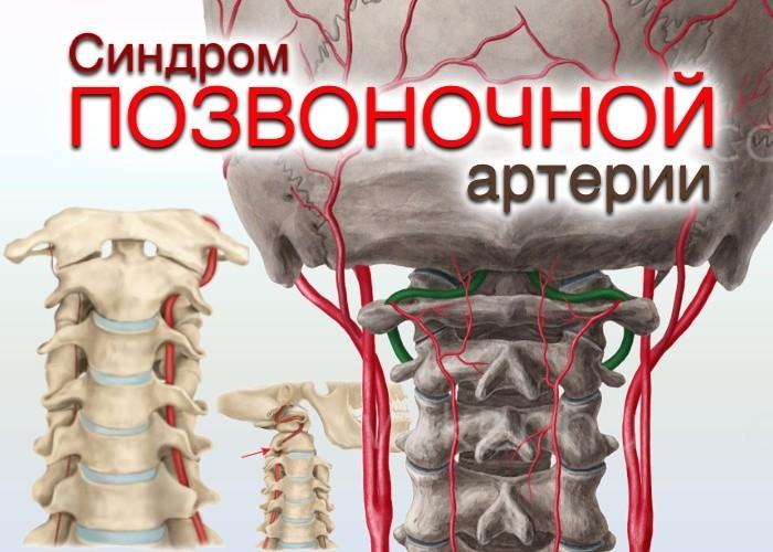 ris1-arteria