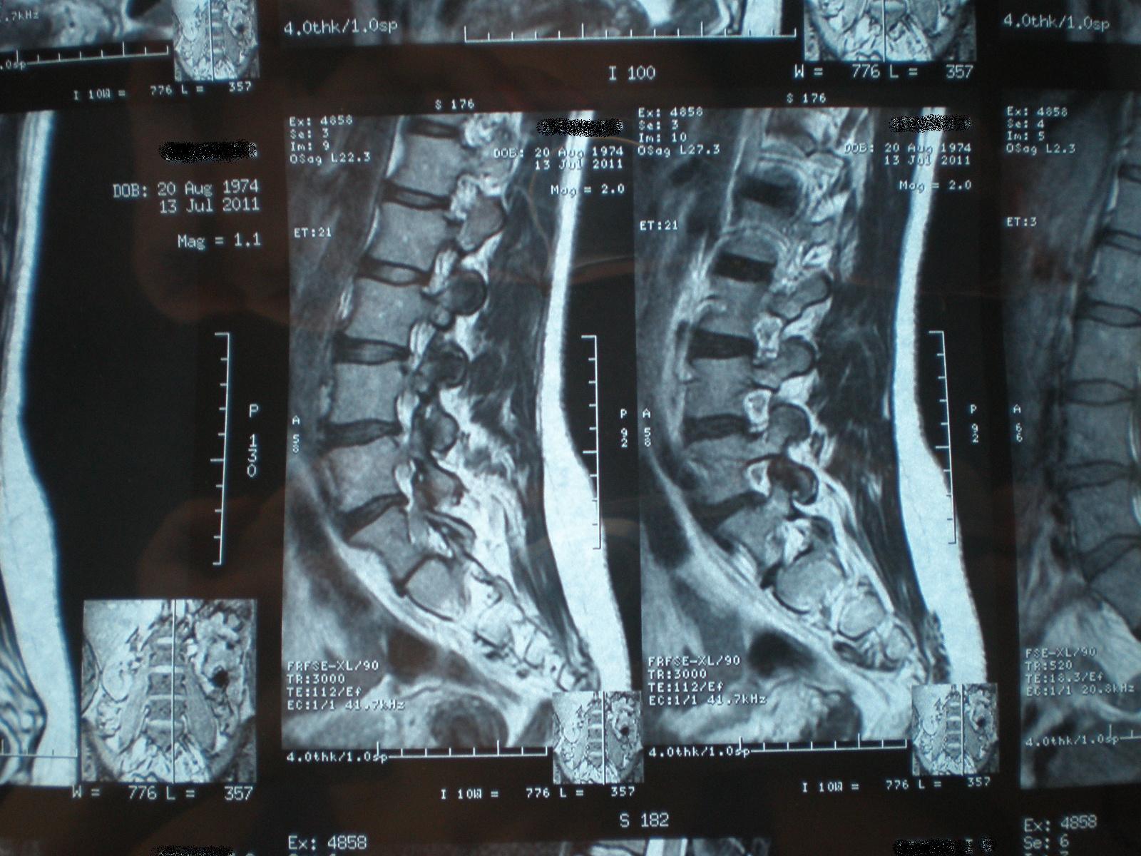 сколиоз томография