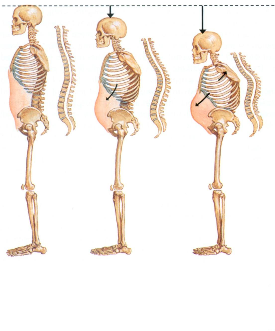 изменения в позвоночнике при остеопорозе
