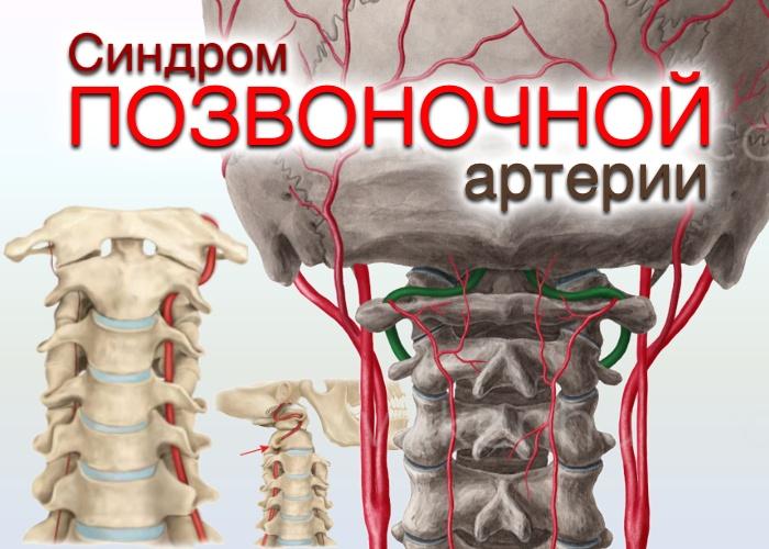 синдром позвоночной артерии