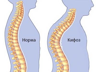 Гипертонус мышц спины