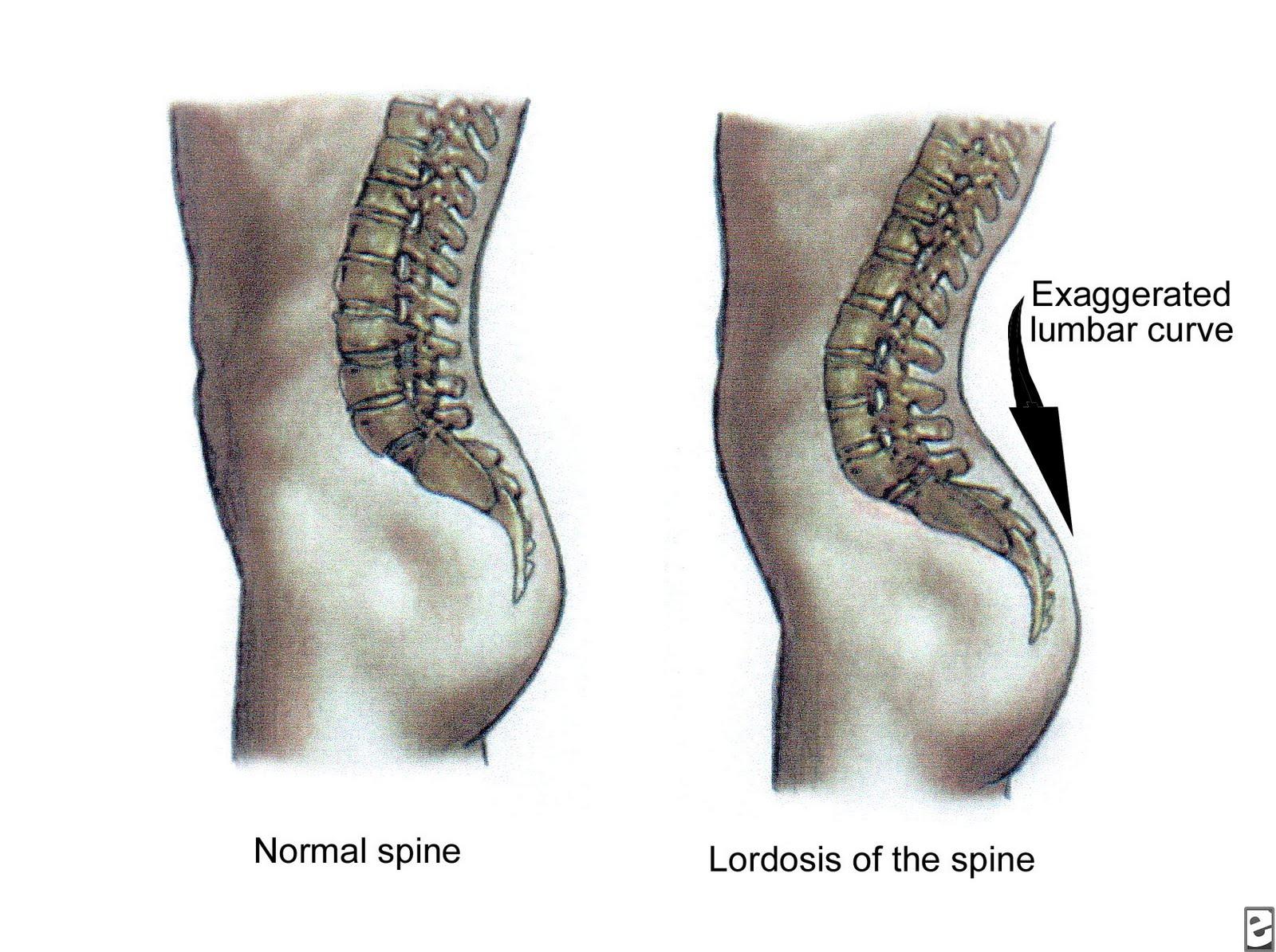 симптомы лордоза