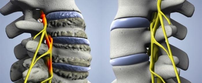 Вертебральный артроз шейного отдела позвоночника симптомы thumbnail