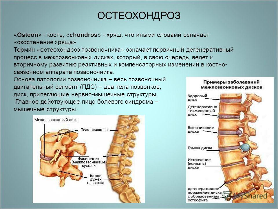 Лечение артроза и артрита кистей рук народными средствами