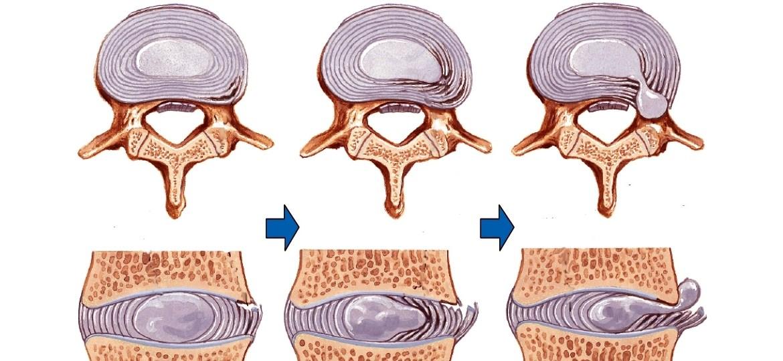 Упражнения при позвоночной грыже шейного отдела позвоночника thumbnail