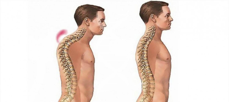 Горб на спине: причины появления и методы лечения