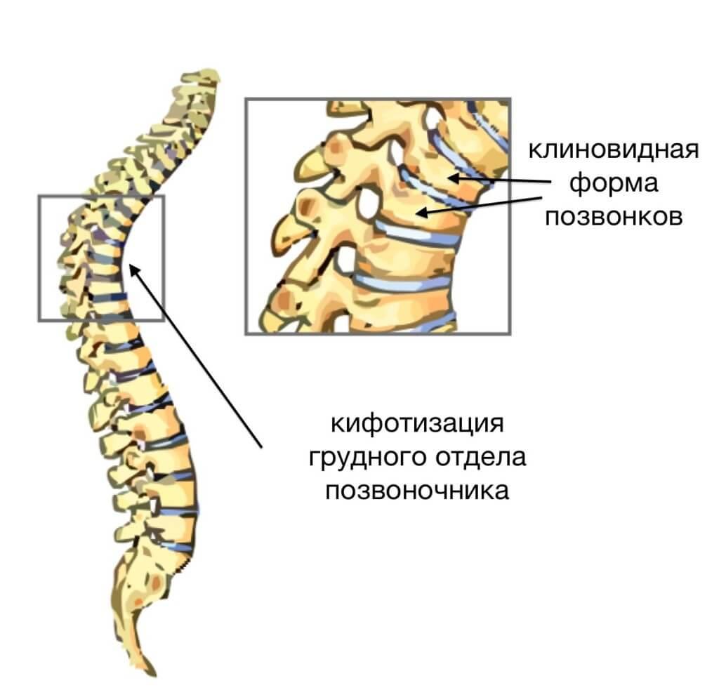 ris1-klinovidnaja-deformacija
