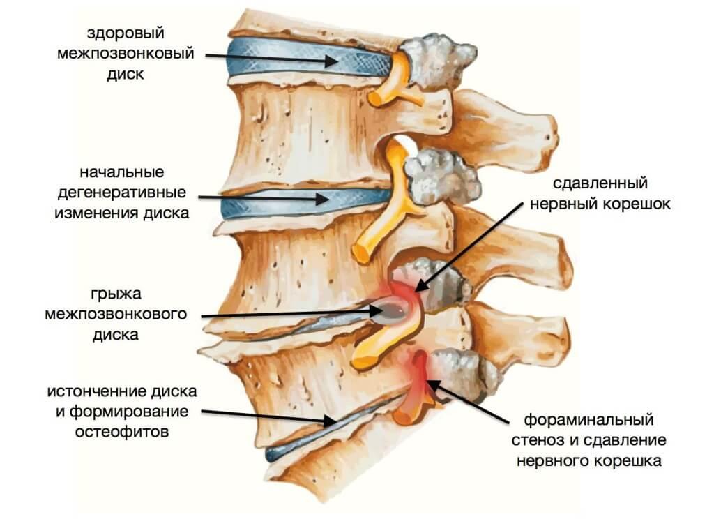 Лечение грыжи шейного отдела