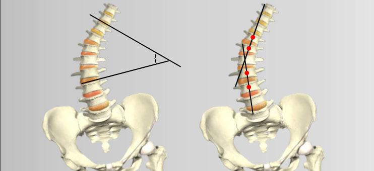 ris1-stepeni-skolioza-opredelenie