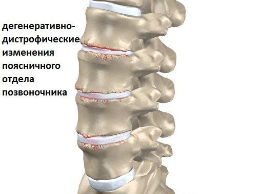 Дистрофические изменения шейного отдела