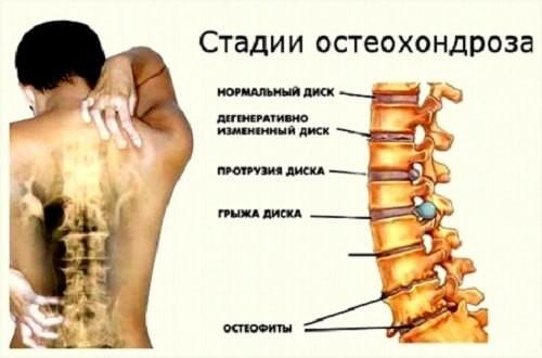 ris1-osteohondroz-3stepeni