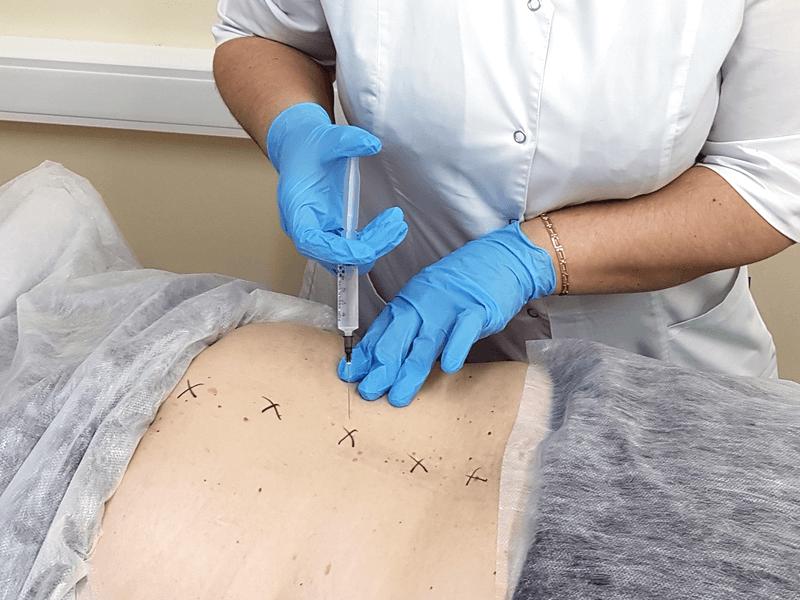 Способы лечения грыжи позвоночника без операции
