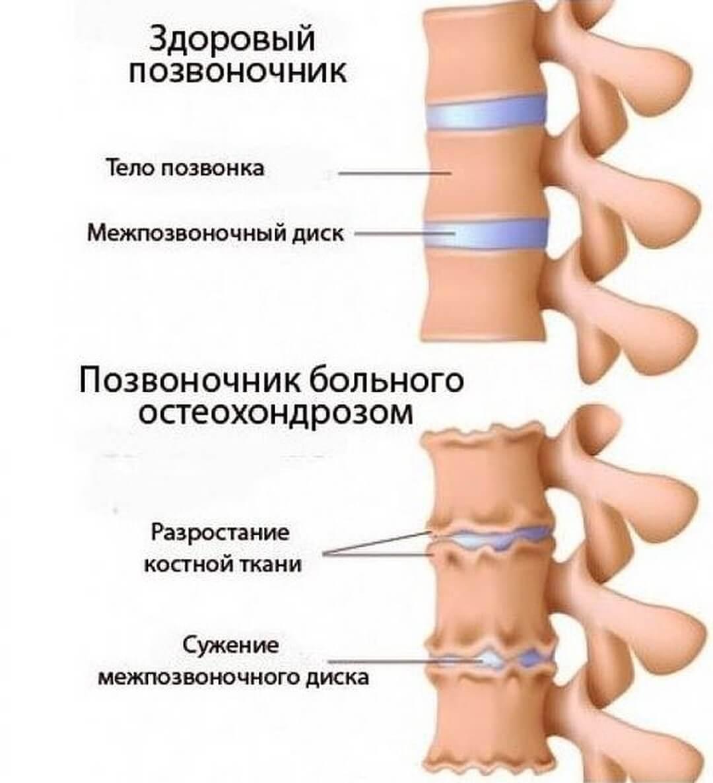 позвоночник пораженный остеохондрозом