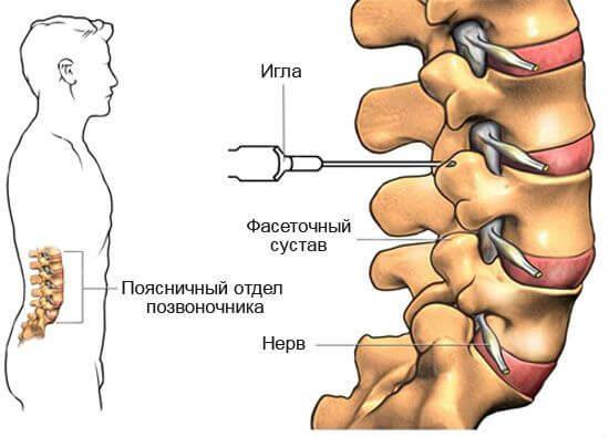 как делать уколы при остеохондрозе