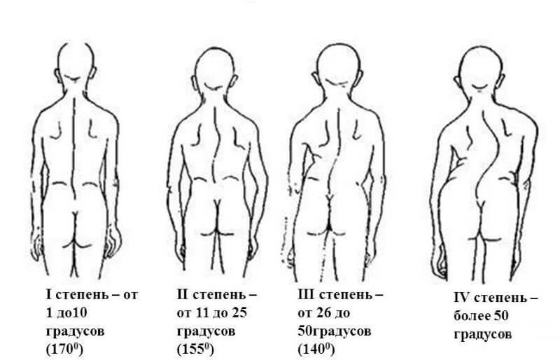 1 степень сколиоза