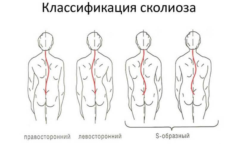 Группа упражнений для лечения искривления позвоночника