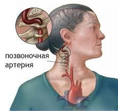 Экстравазальная компрессия позвоночной артерии