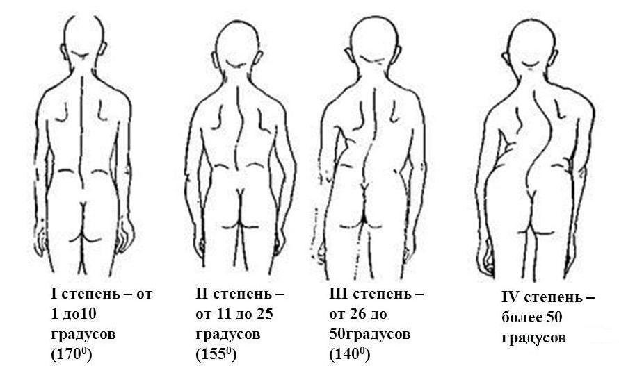 Лечебная физкультура при сколиозе первой степени