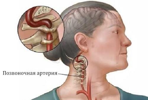 Процесс дегенеративно-дистофических изменений шейгого остеохондроза