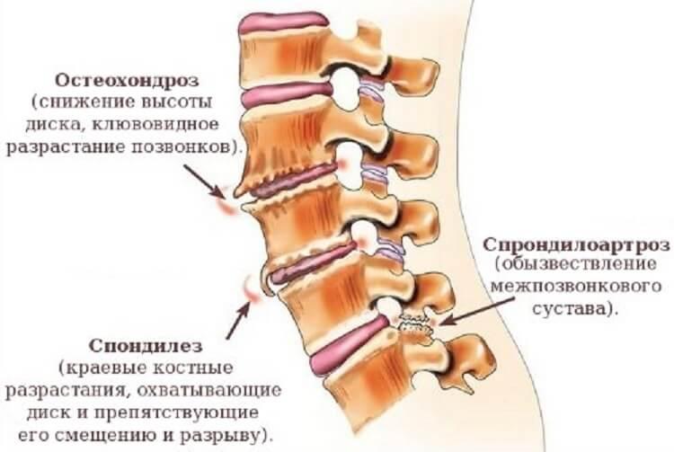 Разновидности патологий дегенеративно-дистрофизических нарушений шейного отдела