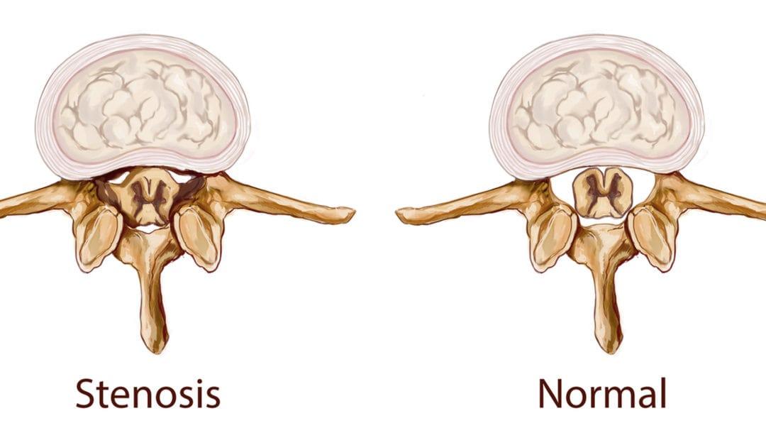 Диагностика стеноза спинномозгового канала