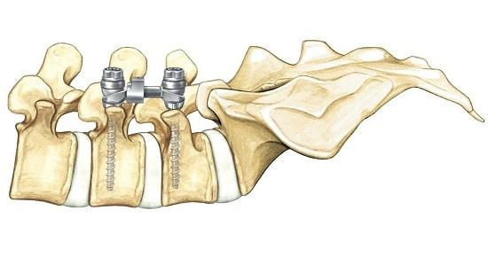 Лечение стеноза спинномозгового канала