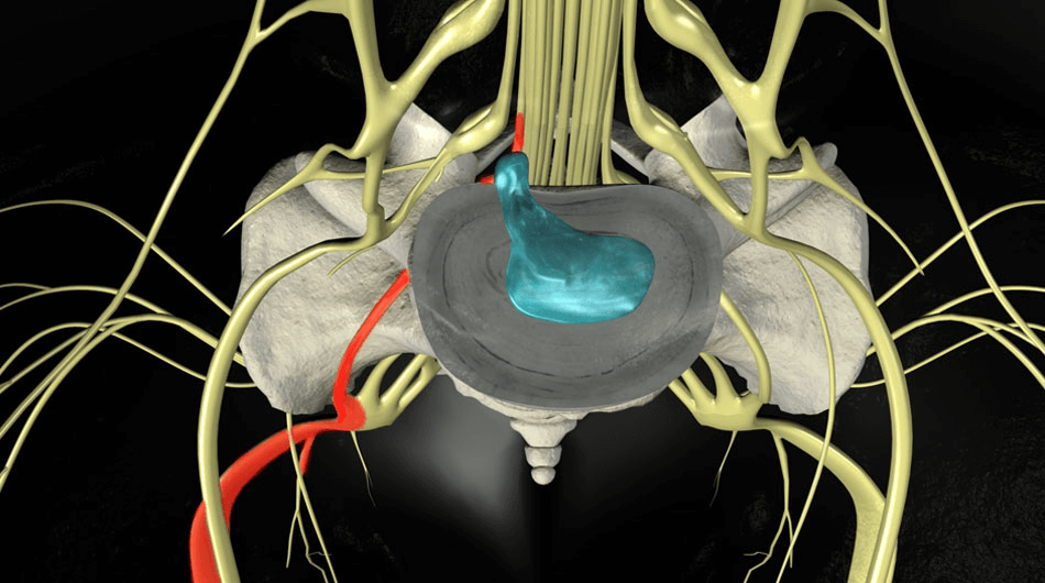Фораминальная грыжа позвоночника