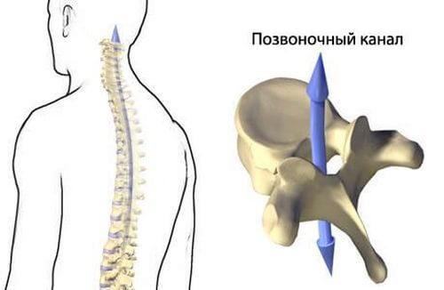 Причины возникновения фораминальной грыжи позвоночника