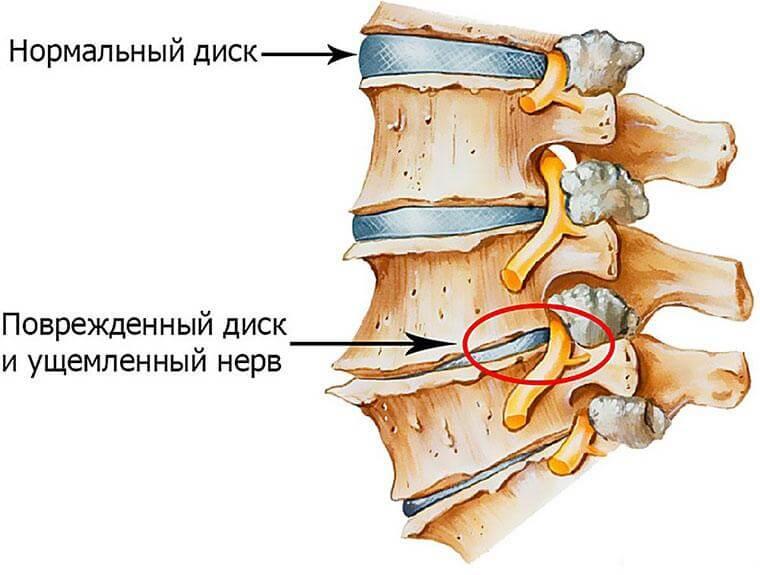 Причины онеменения спины